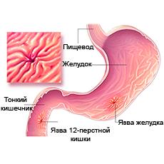 Пептические язвы