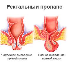 katalog-foto-prolaps-i-klizma-russkoe-porno-bdsm