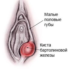 bartholins-gland