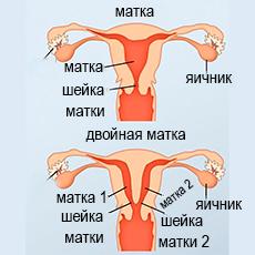 удвоения матки
